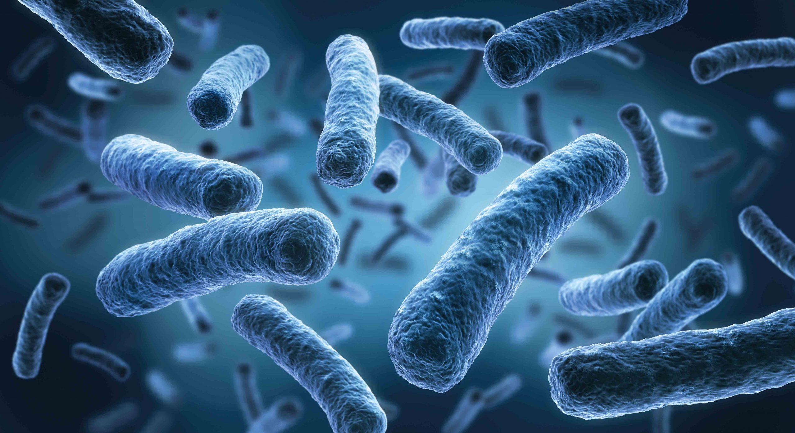 MSFM - Legionnaires' Disease #1